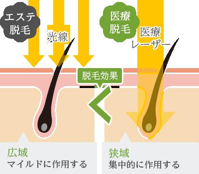 エステ脱毛と医療脱毛の違いは波長にある