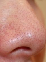 毛穴 鼻 の 専門医に聞く!鼻の角栓を取る正しい方法とNGな方法