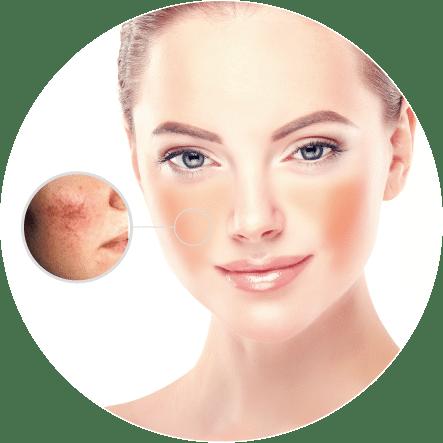 赤ら顔・毛細血管拡張症